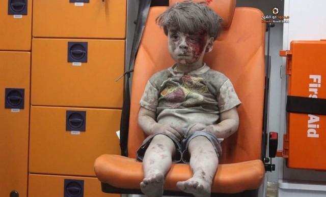 Suriye'deki savaşın simgesi Ümran'ın son görüntüleri