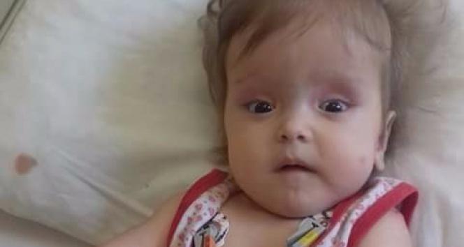 11 aylık Sümeyye'nin yaşı küçük derdi büyük
