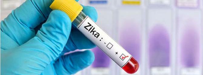 Zika virüsü nedeniyle 2 ölüm