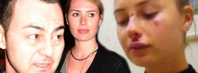 Chloe Loughnan dayak mı yedi?