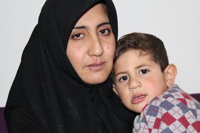 Savaşın çocuğu 3 yaşında 3 kez kalp ameliyatı oldu