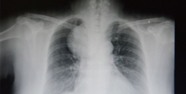 Akciğerinden çıkanlar şok etti