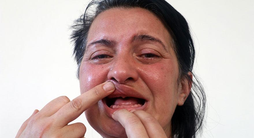 'Bembeyaz dişlerim olsun' istedi, 32 dişinden oldu