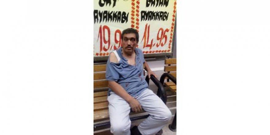 Akciğer kanseri adam oğluyla gittiği markette darp edildi