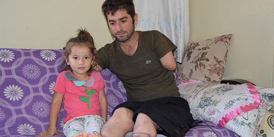 Protez kolu çocuklarına dokunmak için istiyor