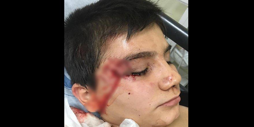 Pitbull çocuğa saldırdı