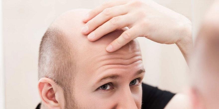 Başımıza saç ektirmek caiz midir?