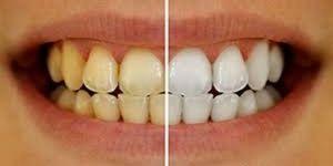 Dişlerdeki sararmayı ciddiye alın
