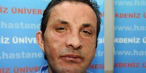 Yüz nakilli Uğur Acar, cinayet davasından beraat etti