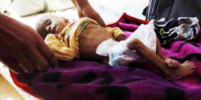 Yemen'de insanlık dramı yaşanıyor! 85 bin çocuk öldü