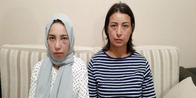 Ankara'da genç kız ve annesi darp edildi