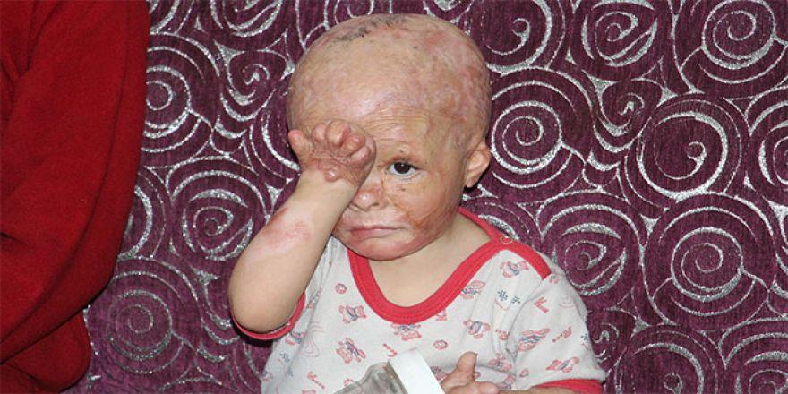 2 yaşındaki Ahmet'in yardım çığlıkları