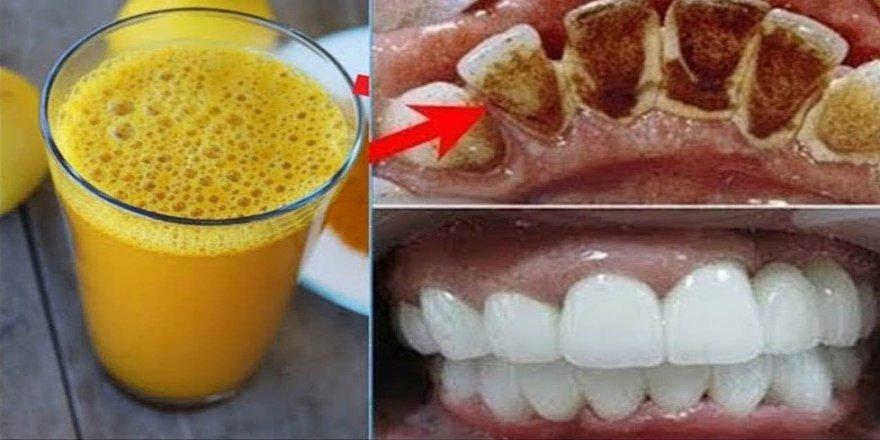 2 Dakika İçinde Sarı Dişlere Çözüm