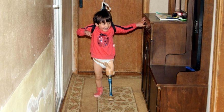 Özge yeni protezine kavuşmak için gün sayıyor